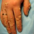 Бородавки на пальцях рук