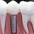 Ізраїльські імпланти зубів