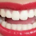 Як можна вирівняти зуби без брекетів