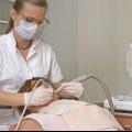 Як проводиться видалення зубного каменю ультразвуком?