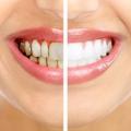 Як виглядає зубний камінь і причини його появи фото