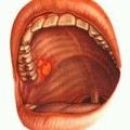 Катаральний стоматит
