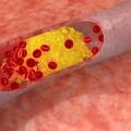 Лікування атеросклерозу судин головного мозку