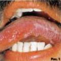 Ураження слизової оболонки порожнини рота білого кольору
