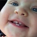 Підвищення температури при прорізуванні зубів у дитини