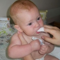 Причини і лікування молочниці в роті у дитини