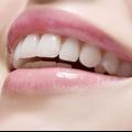 Застосування перекису водню для відбілювання зубів