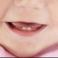Прорізування зубів у дітей: графік і особливості процесу