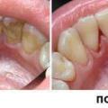Скільки коштує видалити каміння з зубів: ціна і фото