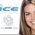 Висококласні брекет-системи inspire ice