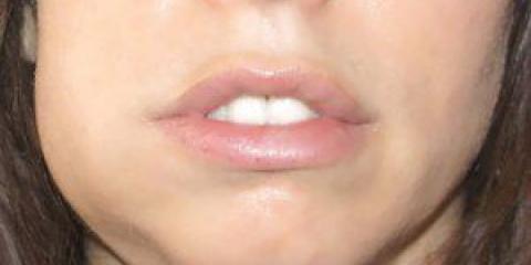 Що робити, якщо ясна опухла, а зуб не болить