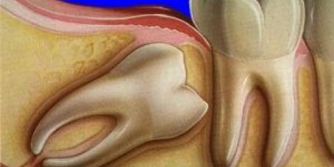 Що робити, якщо зуб мудрості болить? Як зняти біль?
