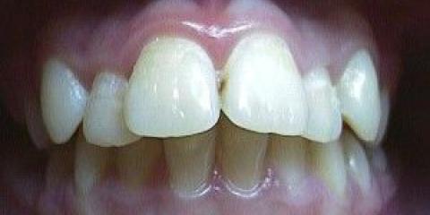 Що робити з кривими зубами
