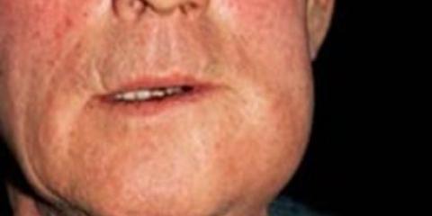 Флюс зубної
