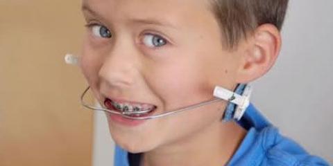Використання лицьової дуги в ортодонтії