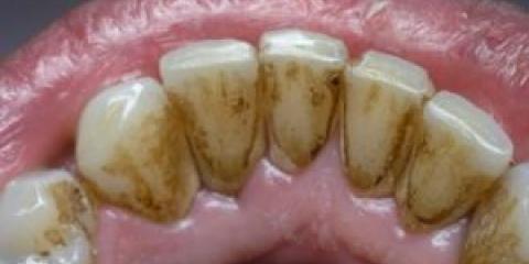 Як видалити наліт на зубах?