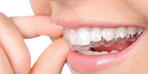 Невидиме вирівнювання зубів за допомогою елайнеров