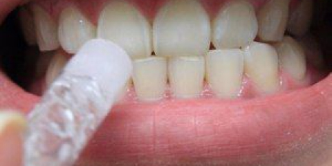 Відбілювання зубів в домашніх умовах: способи та відгуки