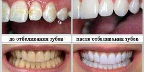 Відгуки про відбілюванні зубів в стоматології