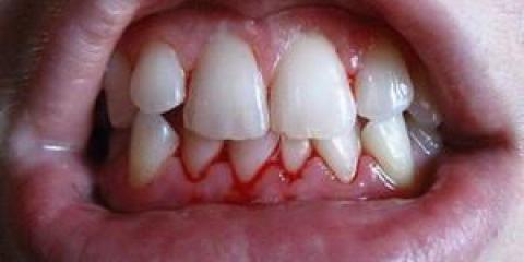 Причини і методи зняття запалення ясен близько зуба