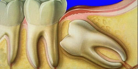 Ретінірованний зуб