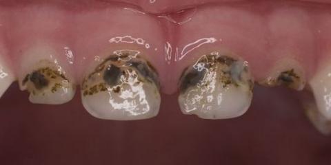 Сріблення молочних зубів і альтернативні варіанти