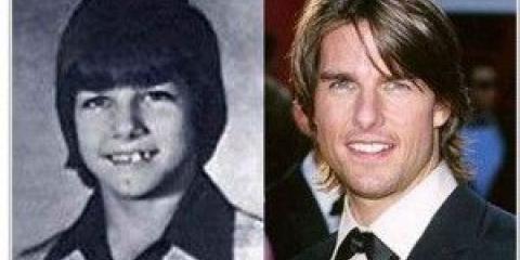 Посмішка голлівудських акторів